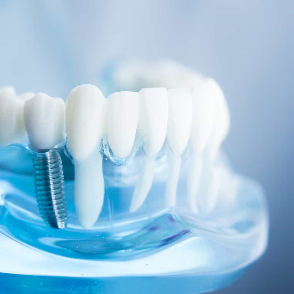 oral surgery implantology in Dubai