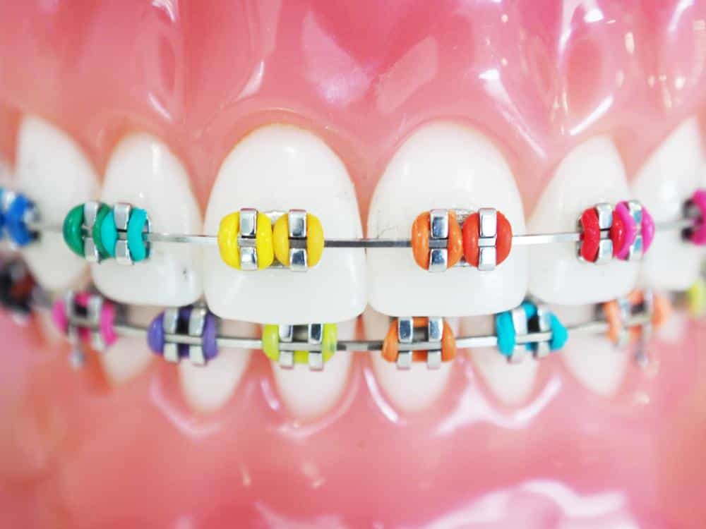 Orthodontic Treatment Braces Vs Clear Aligners